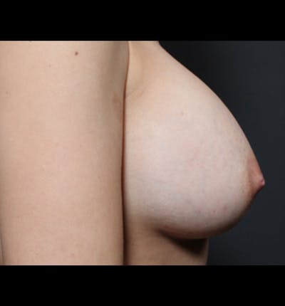 Breast Augmentation Gallery - Patient 14089681 - Image 8