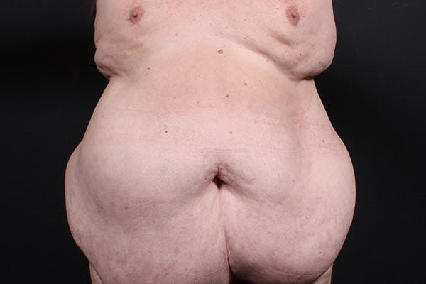 Male Tummy Tuck Gallery - Patient 14089682 - Image 3