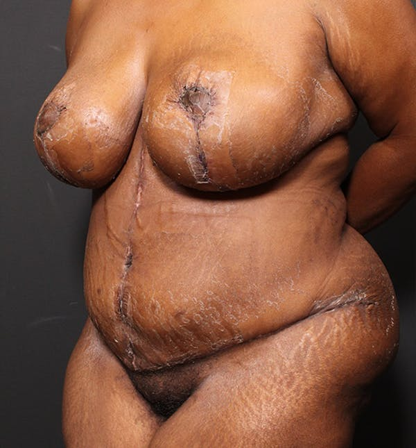 Plus Size Tummy Tuck® Gallery - Patient 14089688 - Image 4