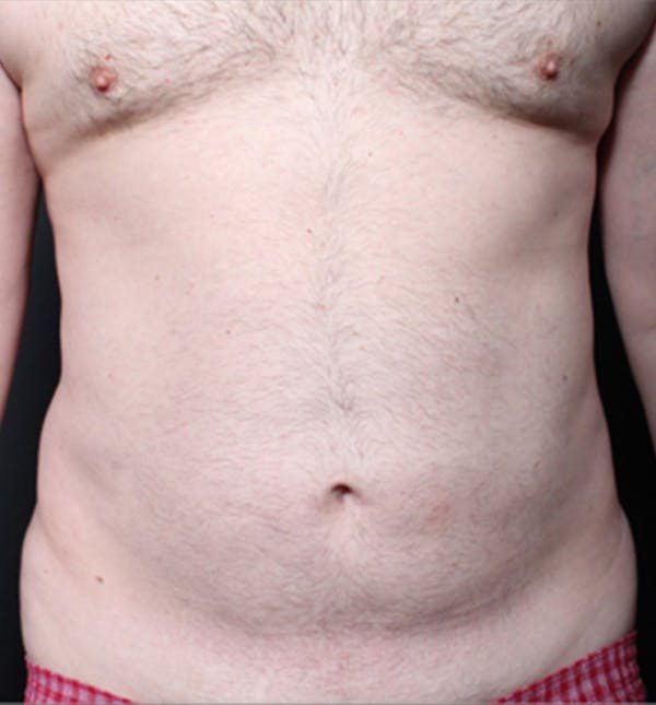 Male Chest Reduction Gallery - Patient 14089699 - Image 3