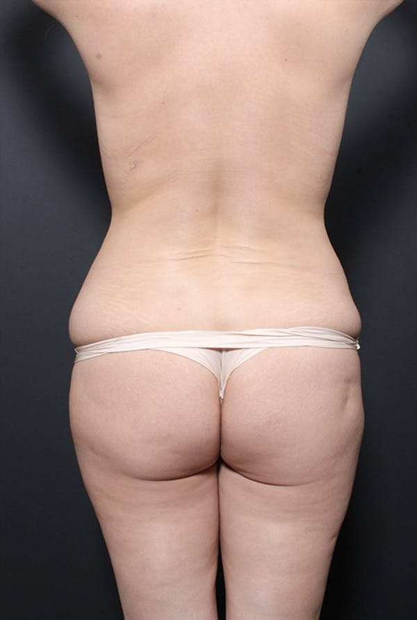 Brazilian Butt Lift Gallery - Patient 14089680 - Image 5