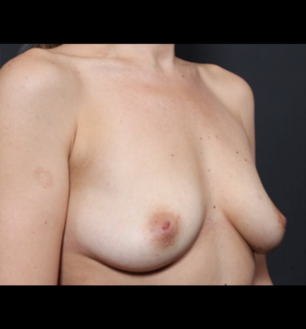Breast Augmentation Gallery - Patient 14089681 - Image 9