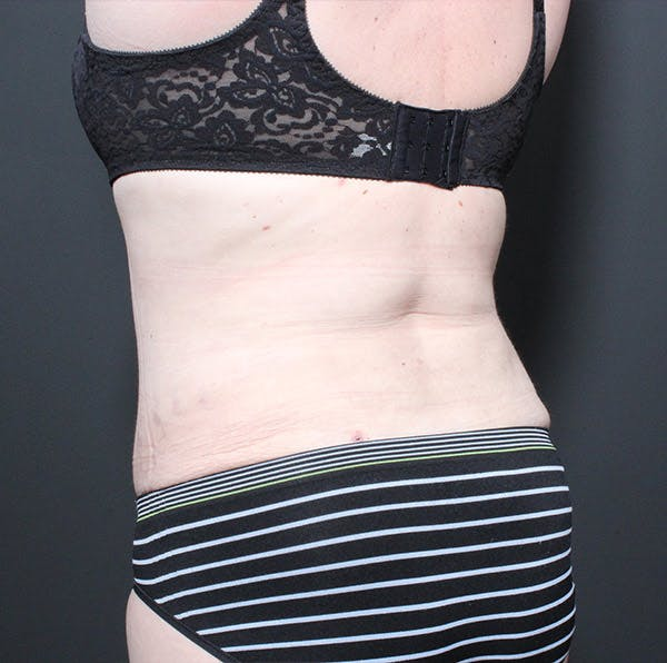 Tummy Tuck Gallery - Patient 14089683 - Image 8