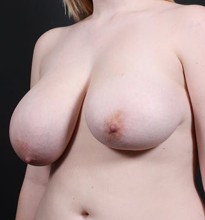 Breast Lift Mastopexy Gallery - Patient 14089690 - Image 1