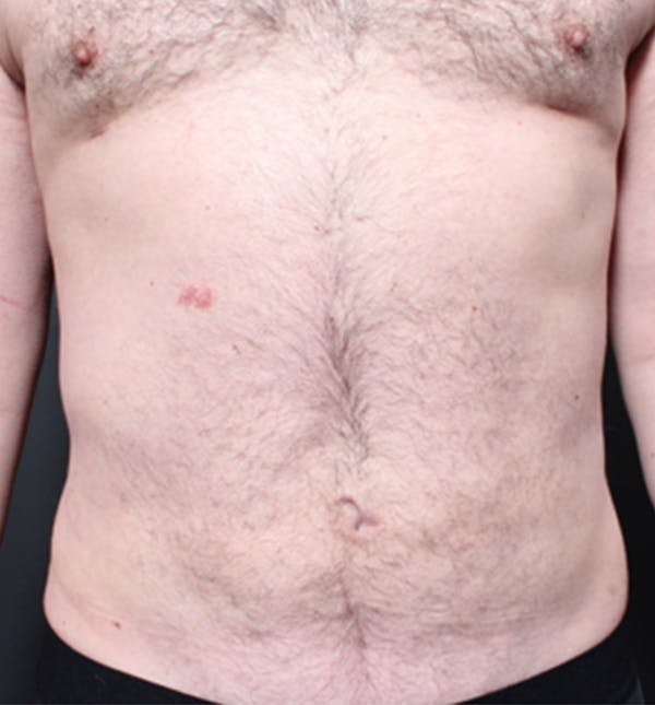 Male Chest Reduction Gallery - Patient 14089699 - Image 4