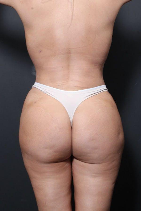 Brazilian Butt Lift Gallery - Patient 14089680 - Image 6