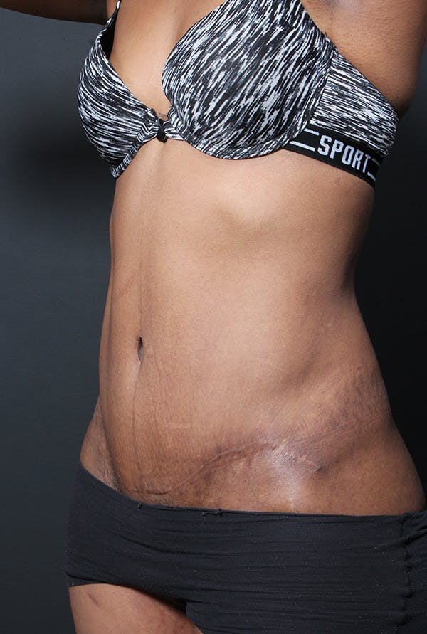 Mommy Makeover Gallery - Patient 14089700 - Image 2