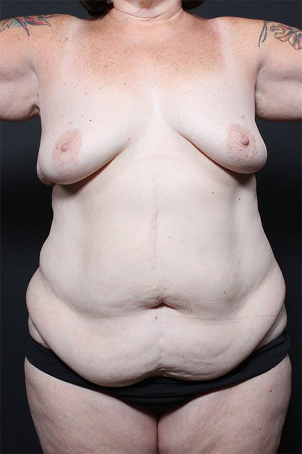 Liposuction Gallery - Patient 14089686 - Image 3