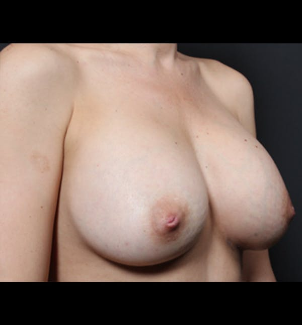 Breast Augmentation Gallery - Patient 14089681 - Image 10