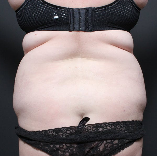 Tummy Tuck Gallery - Patient 14089683 - Image 9