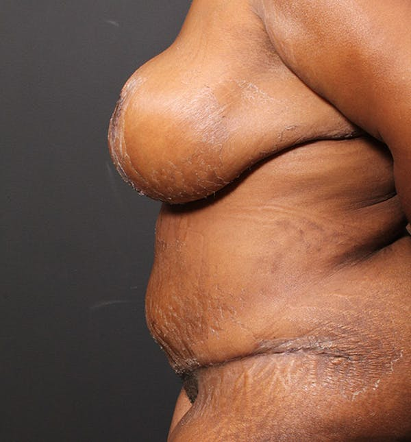 Plus Size Tummy Tuck® Gallery - Patient 14089688 - Image 6