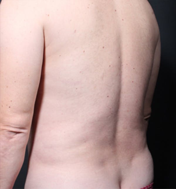 Male Chest Reduction Gallery - Patient 14089699 - Image 5