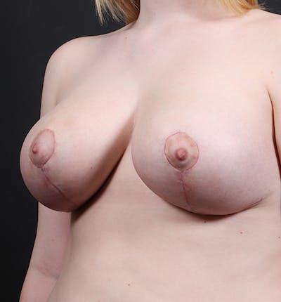 Breast Lift Mastopexy Gallery - Patient 14089690 - Image 2