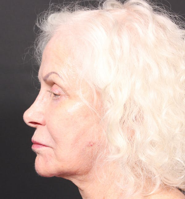 Injectables Gallery - Patient 14089691 - Image 6
