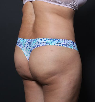 Brazilian Butt Lift Gallery - Patient 14089684 - Image 1