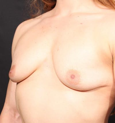 Breast Augmentation Gallery - Patient 14089689 - Image 1