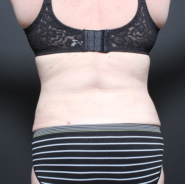 Tummy Tuck Gallery - Patient 14089683 - Image 10