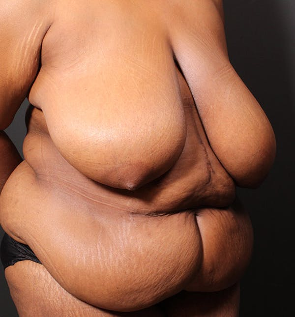Plus Size Tummy Tuck® Gallery - Patient 14089688 - Image 7