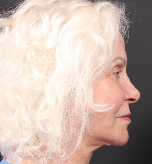 Injectables Gallery - Patient 14089691 - Image 7