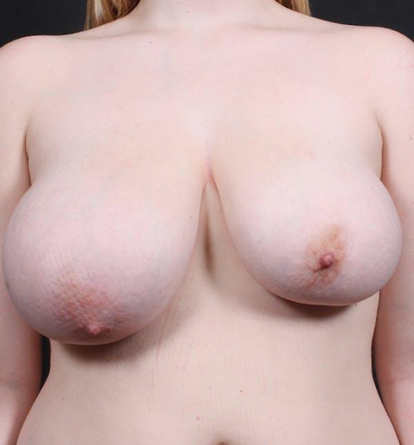 Breast Lift Mastopexy Gallery - Patient 14089690 - Image 3