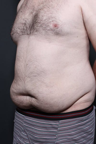 Male Tummy Tuck Gallery - Patient 14089694 - Image 1