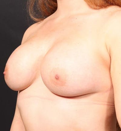 Breast Augmentation Gallery - Patient 14089689 - Image 2