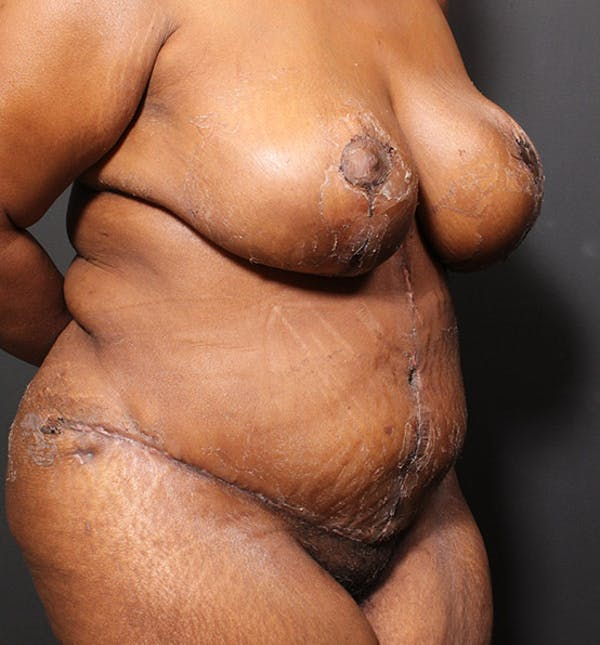 Plus Size Tummy Tuck® Gallery - Patient 14089688 - Image 8