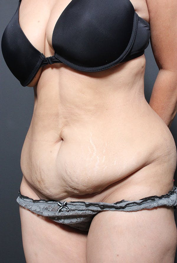 Tummy Tuck Gallery - Patient 14089695 - Image 1