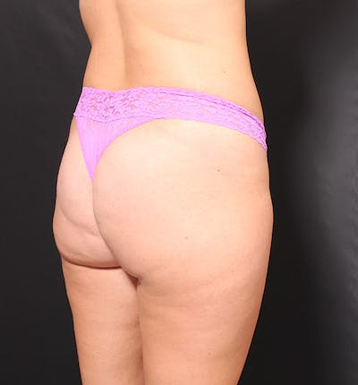 Brazilian Butt Lift Gallery - Patient 14089687 - Image 1