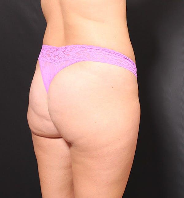 Brazilian Butt Lift Gallery - Patient 14089687 - Image 1