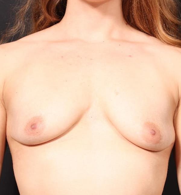 Breast Augmentation Gallery - Patient 14089689 - Image 3