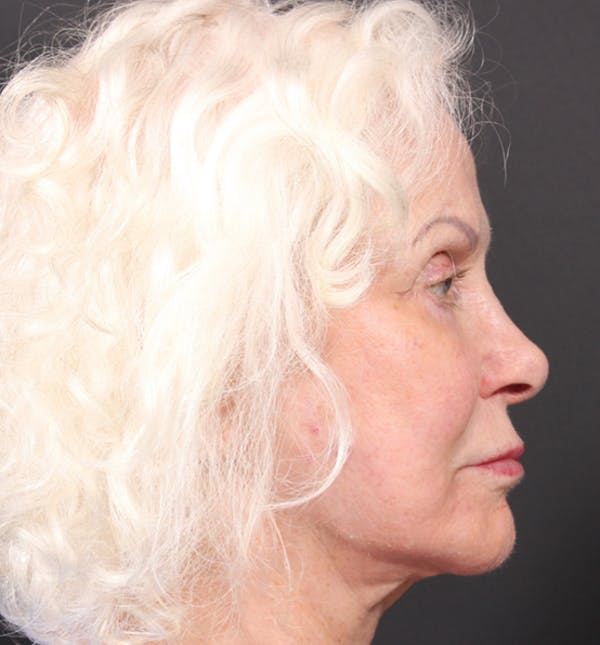 Injectables Gallery - Patient 14089691 - Image 8