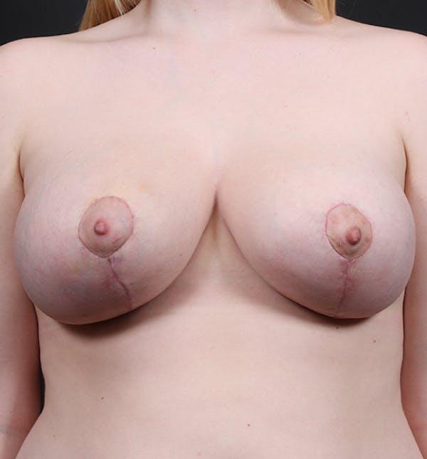 Breast Lift Mastopexy Gallery - Patient 14089690 - Image 4