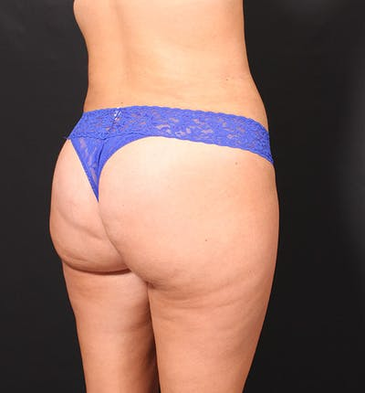 Brazilian Butt Lift Gallery - Patient 14089687 - Image 2