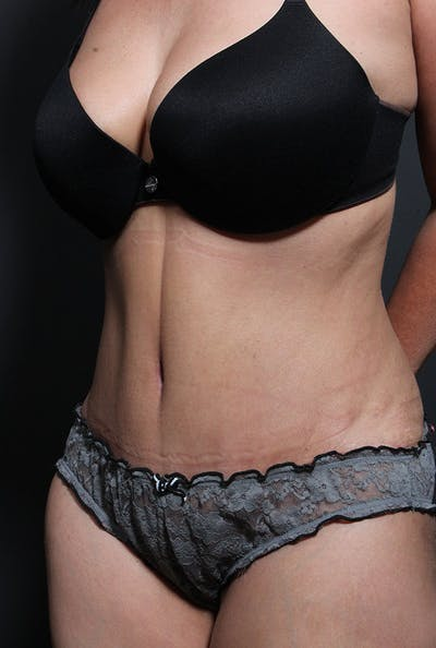 Tummy Tuck Gallery - Patient 14089695 - Image 2
