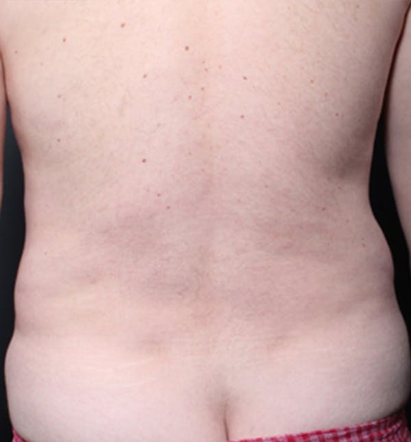 Male Chest Reduction Gallery - Patient 14089699 - Image 9