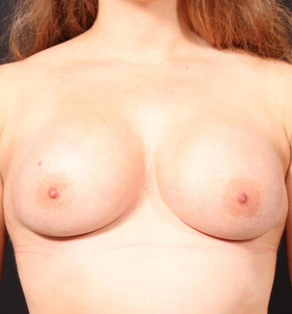 Breast Augmentation Gallery - Patient 14089689 - Image 4