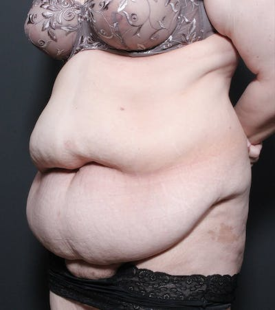 Liposuction Gallery - Patient 14089696 - Image 1