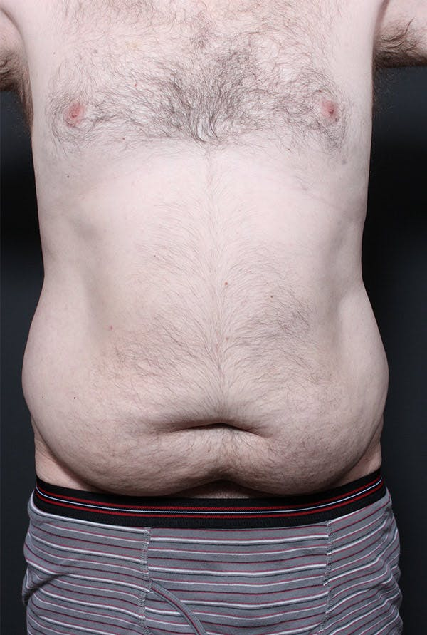 Male Tummy Tuck Gallery - Patient 14089694 - Image 3