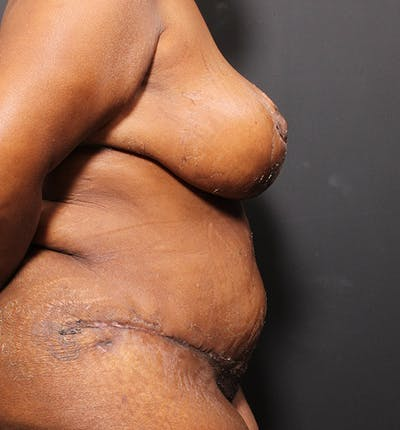 Plus Size Tummy Tuck® Gallery - Patient 14089688 - Image 10