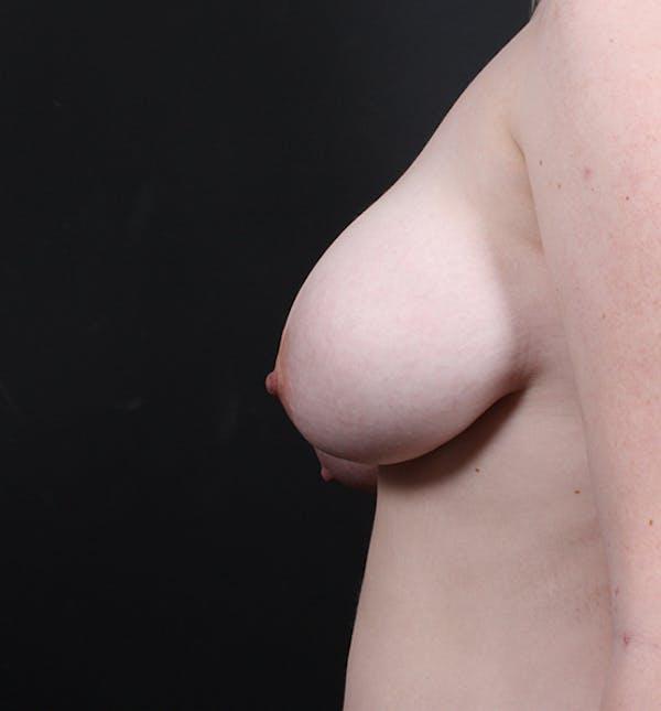 Breast Lift Mastopexy Gallery - Patient 14089690 - Image 5