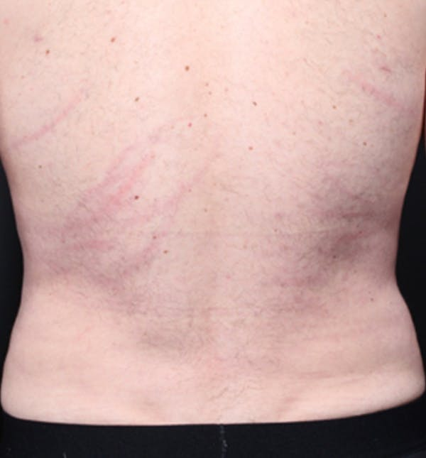 Male Chest Reduction Gallery - Patient 14089699 - Image 10