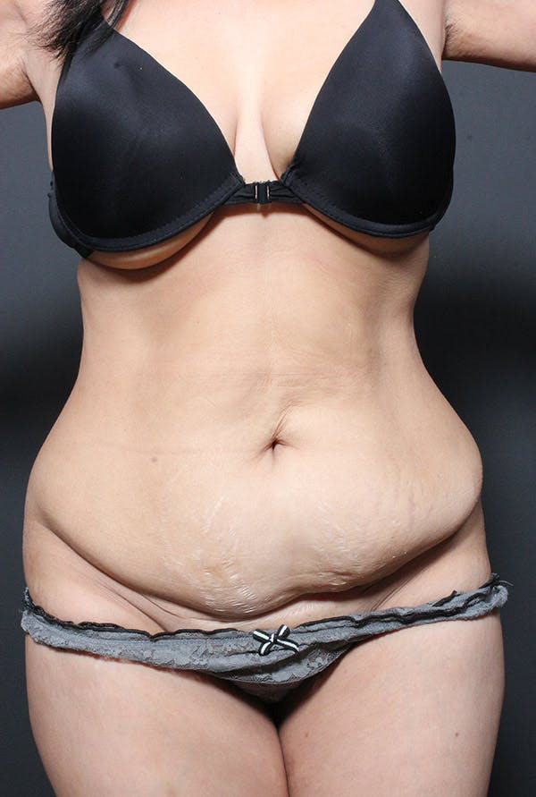 Tummy Tuck Gallery - Patient 14089695 - Image 3