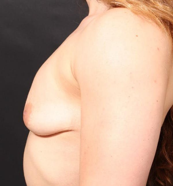 Breast Augmentation Gallery - Patient 14089689 - Image 5