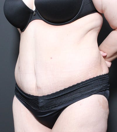 Liposuction Gallery - Patient 14089696 - Image 2