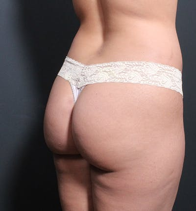 Brazilian Butt Lift Gallery - Patient 14089693 - Image 1
