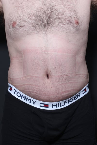 Male Tummy Tuck Gallery - Patient 14089694 - Image 4