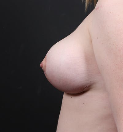 Breast Lift Mastopexy Gallery - Patient 14089690 - Image 6
