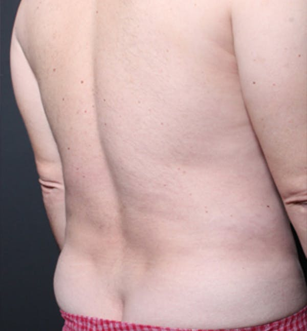 Male Chest Reduction Gallery - Patient 14089699 - Image 11