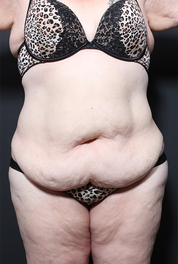 Plus Size Tummy Tuck® Gallery - Patient 14089702 - Image 1